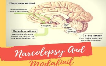 Narcolepsy-And-Modafinil